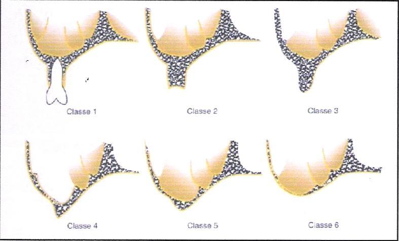 Riabilitazione Implanto-protesica in paziente con Atrofia del Mascellare superiore con ausilio di materiale eterologo e membrana