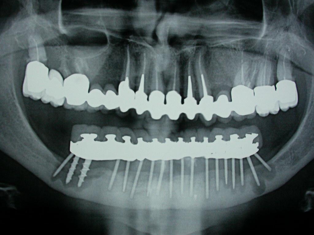 Effetti dell'Incidenza Implantare e loro Complicanze per la bonifica e riabilitazione protesica