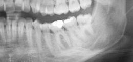 Risoluzione di un ascesso di origine endodontica