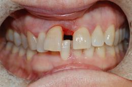 Implantologia elemento singolo
