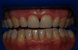 Sbiancamento dentale con Lampada Zoom discus dental