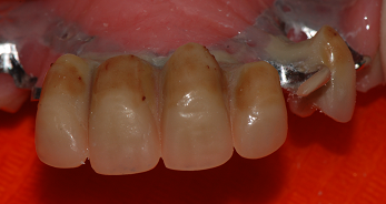 Protesi dentaria rimovibile