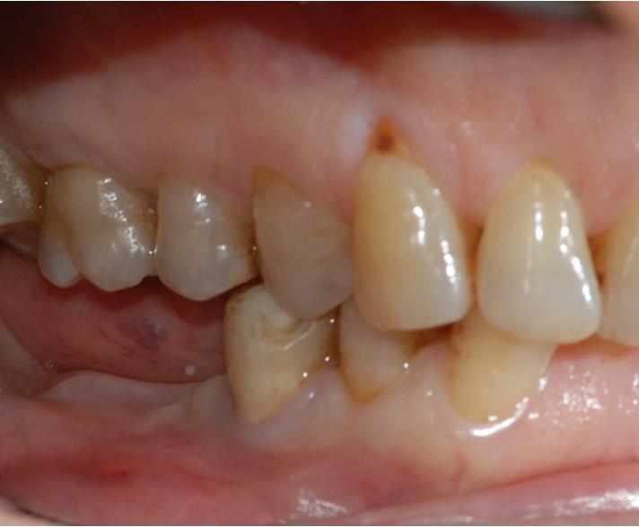 Implantologia in elementi posteriori