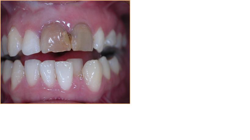 Sbiancamento denti necrotici
