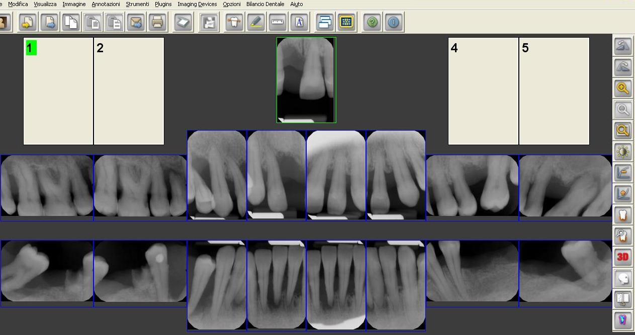 Diagnosi per la valutazione di Parodontite