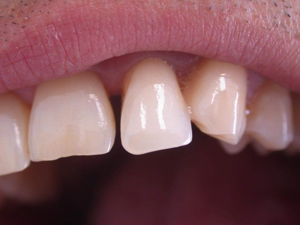 Chiusura diastema dentale