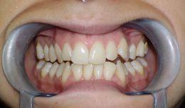 Disfunzione articolazione temporo mandibolare