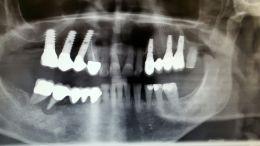 Implantologia post - estrattiva con rigenerazione ossea guidata