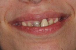 Odontoiatria Ricostruttiva Multidisciplinare