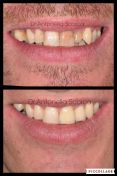 Corone estetiche in zirconia