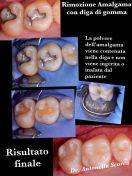Rimozione Otturazioni in Amalgama con diga di gomma protettiva