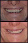 Implantologia mini invasiva senza punti di sutura per la ricostruzione del sorriso