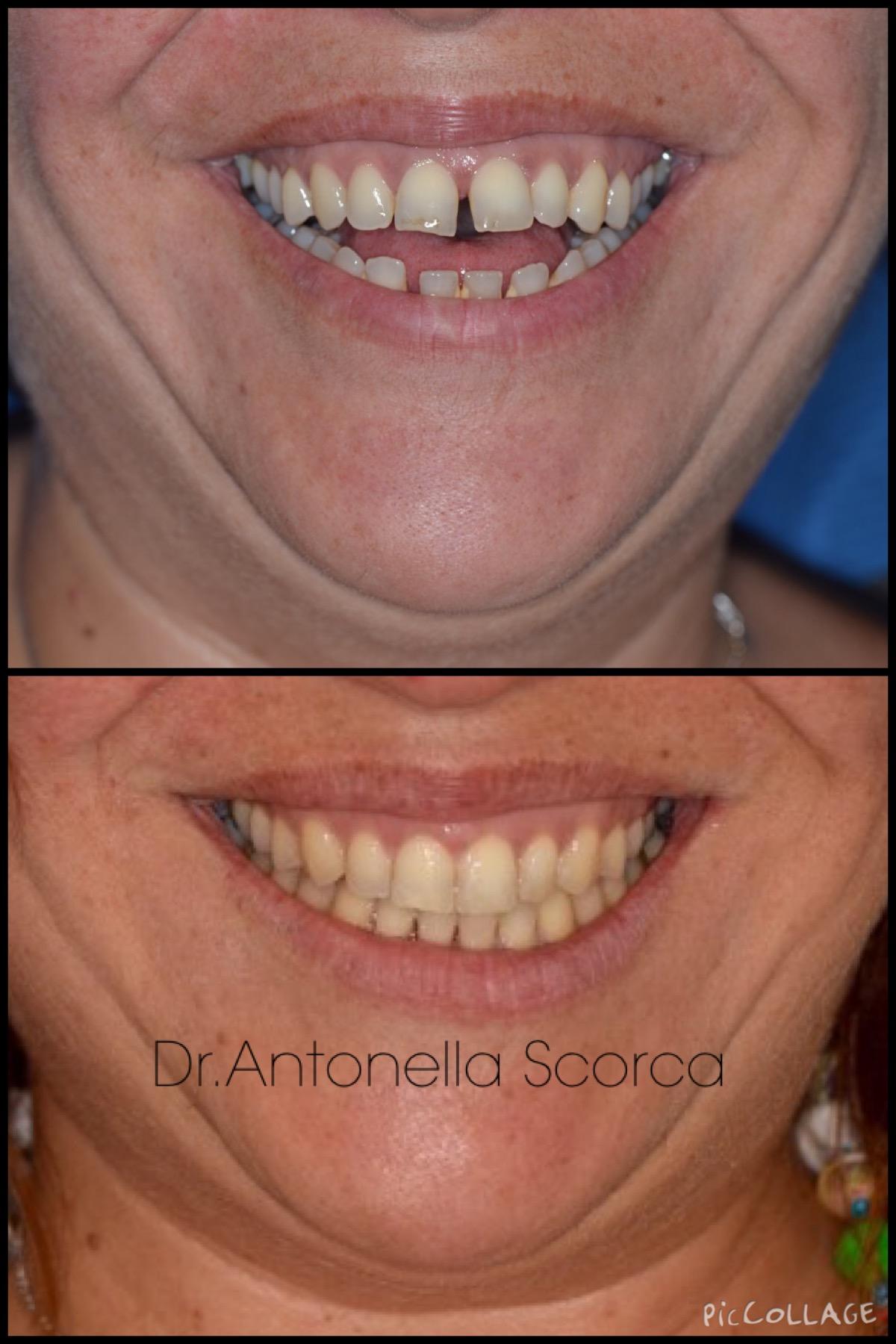 Allineamento dei denti di un paziente con morso aperto