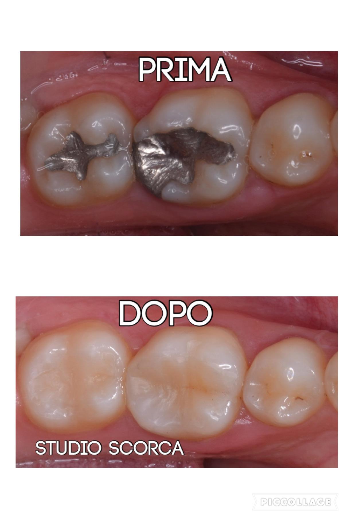 Ricostruzione estetica denti