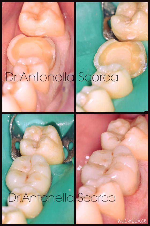 Come salvare un dente:intarsio in composito estetico
