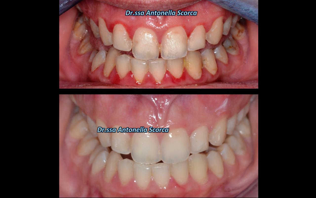 Complesso caso clinico con gengivite e carie multiple
