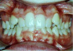 Damon il sistema ortodontico meraviglioso .