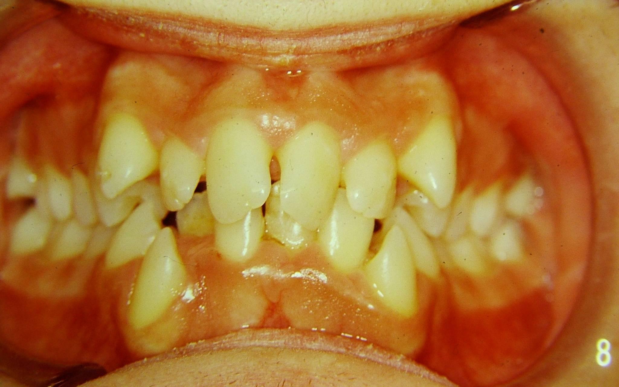La biprotrusione puo' essere trattata con estrazione dei premolari