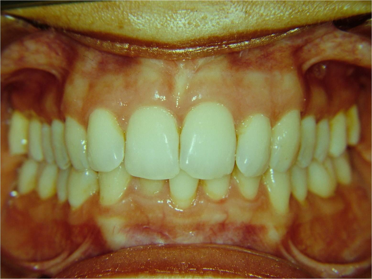 Damon il sistema ortodontico meraviglioso - il caso impossibile