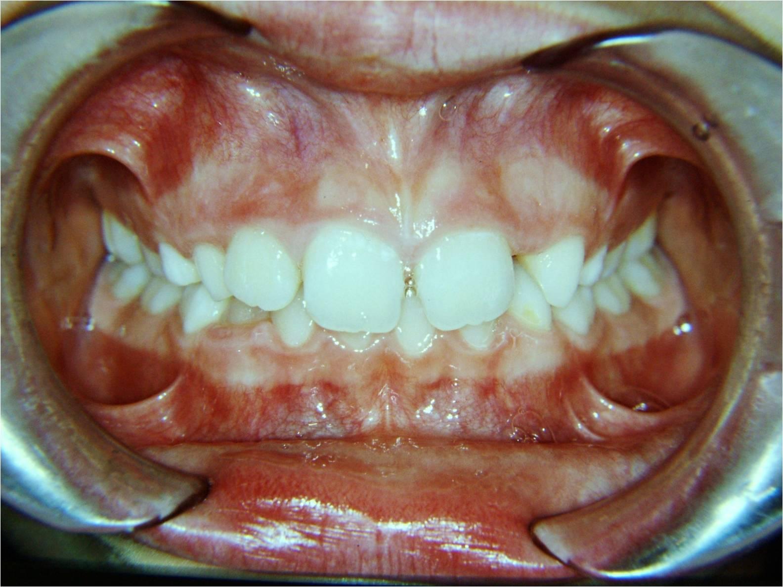 Damon il sistema ortodontico meraviglioso caso 5