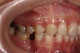 Recupero ortodontico per l'inserimento implantare