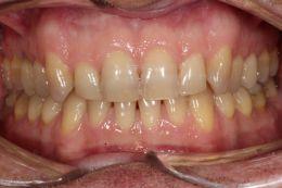 Sbiancamento dentale in paziente con grave discromia