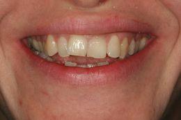 Sbiancamento immediato post-ortodonzia