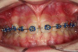 Frenulectomia Tecnica Doppia in Corso di Trattamento Ortodontico