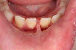 Frenulectomia Frenulo Vestibolare Inferiore