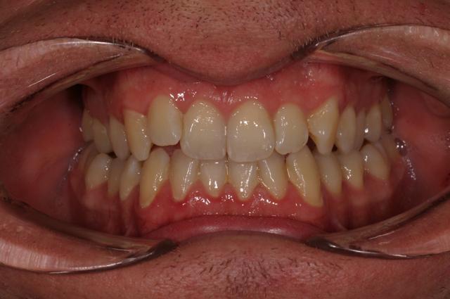 Ortodonzia fissa in adulto