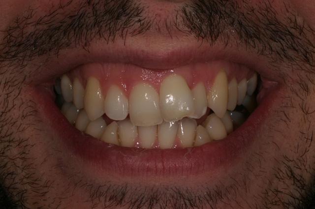Trattamento adulto con estrazione di quattro premolari