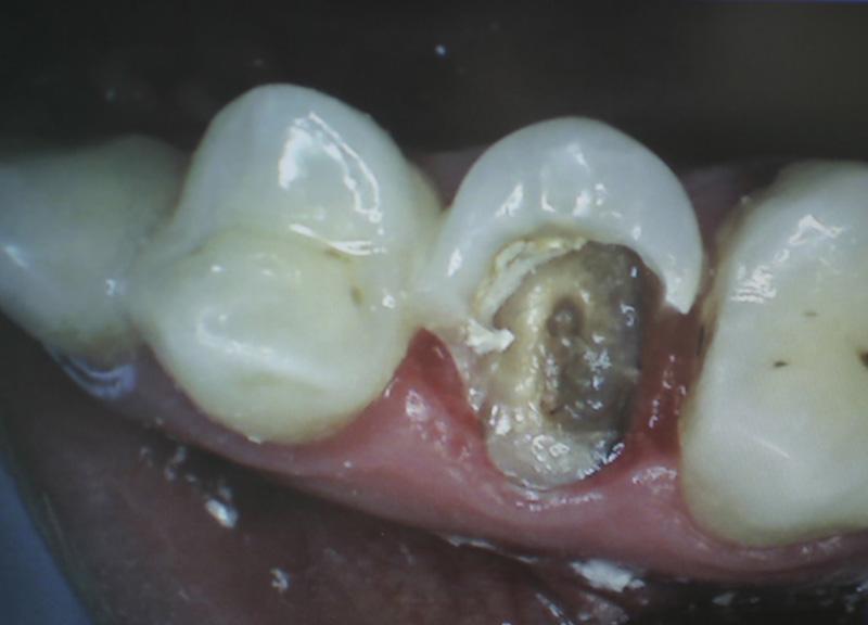 Estrusione Ortodontica di un premolare