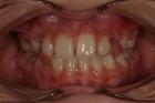 Terapia ortodontica fissa - Canino vestibolare ritenuto