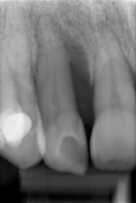 Recupero di una tasca parodontale con innesto