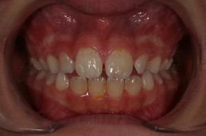 Morso aperto - ortodonzia e logopedia