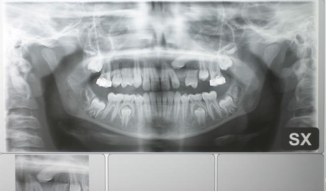Trazione di canino incluso su minivite ortodontica