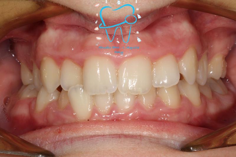 Trattamento di Agenesie con Ortodonzia Fissa