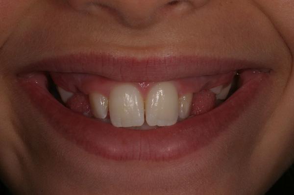 Utilizzo di un REP on '5' ed ortodonzia fissa di finitura