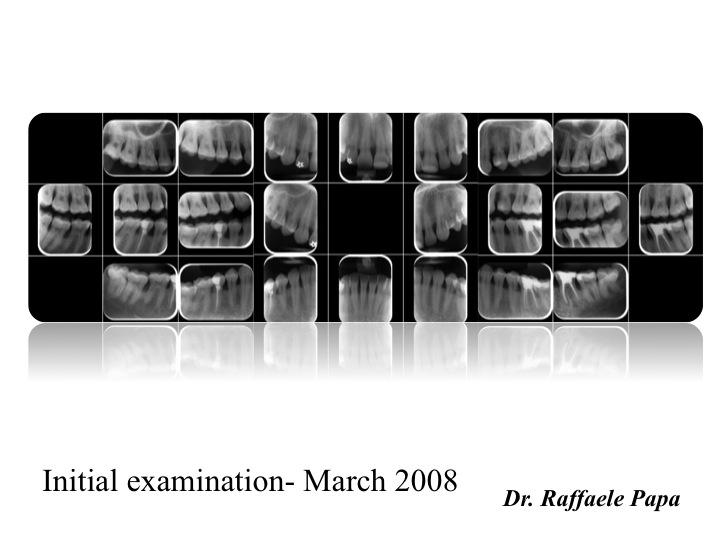 Trattamento parodontale di una giovane paziente