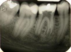 Ritrattamento endodontico di molare inferiore con lesione periapicale, rizolisi apicale e riassorbimento interno.