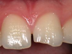 Ricostruzione del margine incisale di incisivo centrale superiore fratturato.