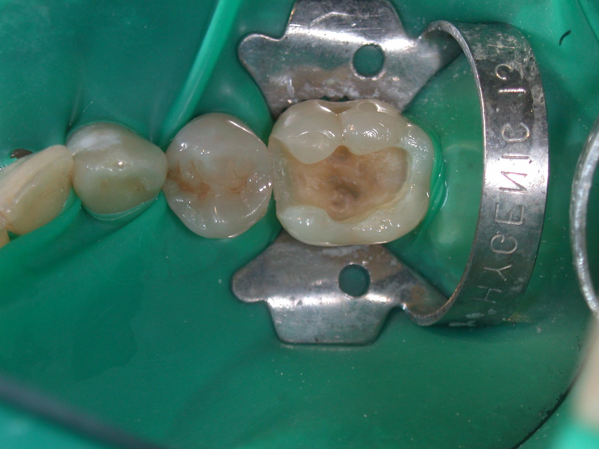 Otturazione estetica anatomizzata in composito con caratterizzazioni occlusali di molare inferiore.