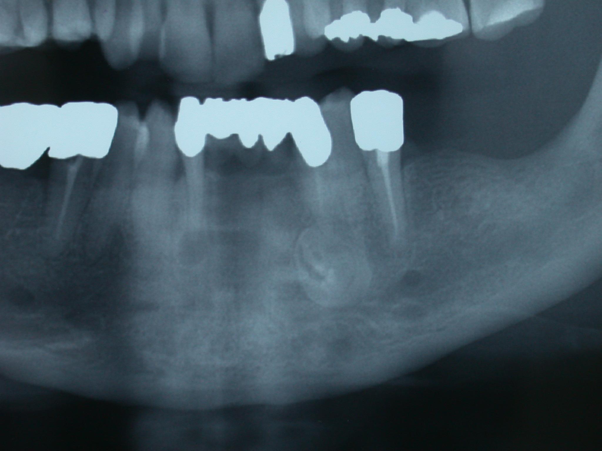 Asportazione chirurgica di odontoma composito in regione canina mandibolare.