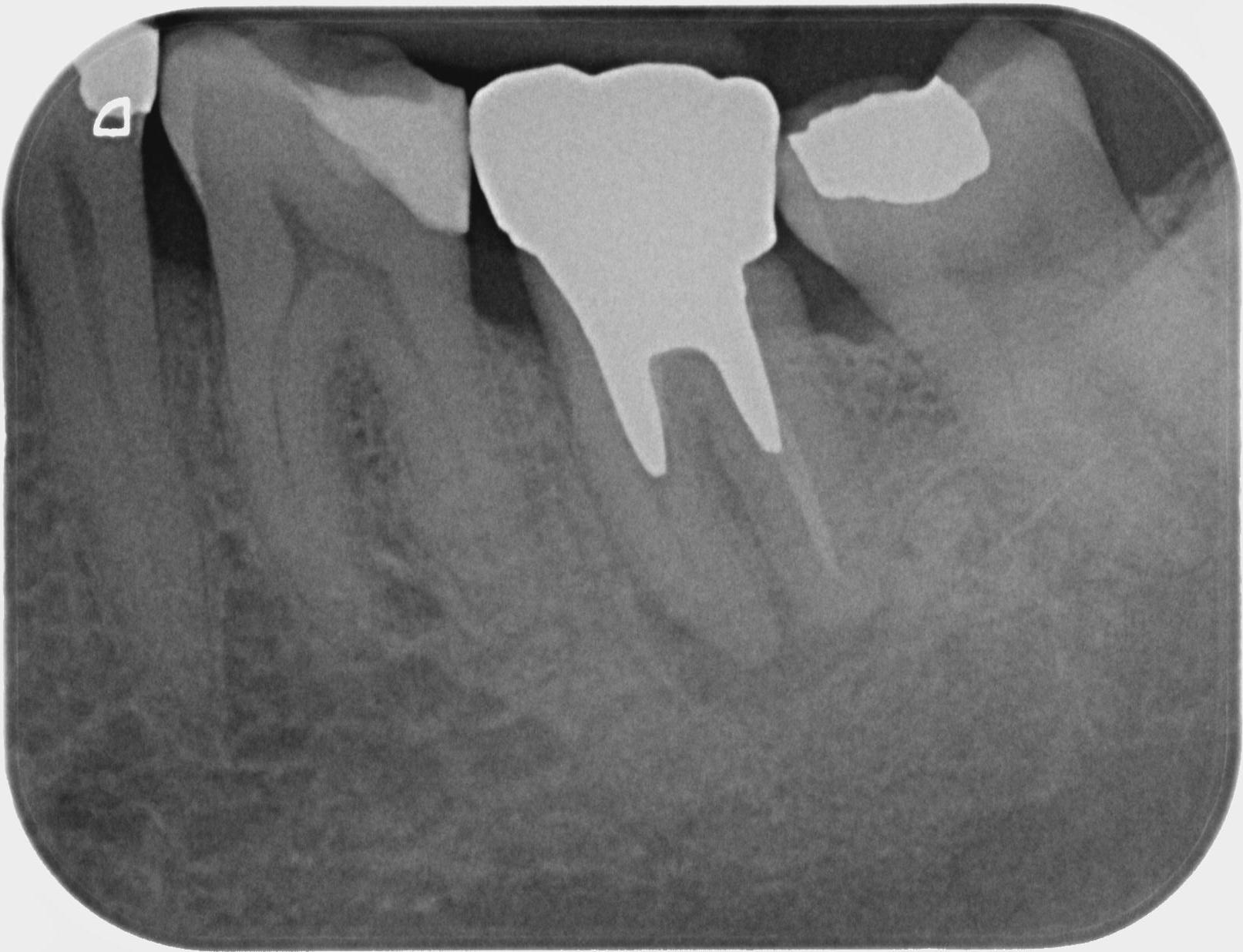 Ritrattamento endodontico complesso di molare inferiore con granuloma periapicale