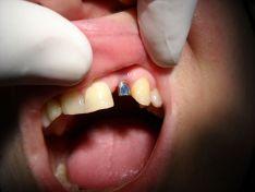 Implantologia: impianto dentale e corona