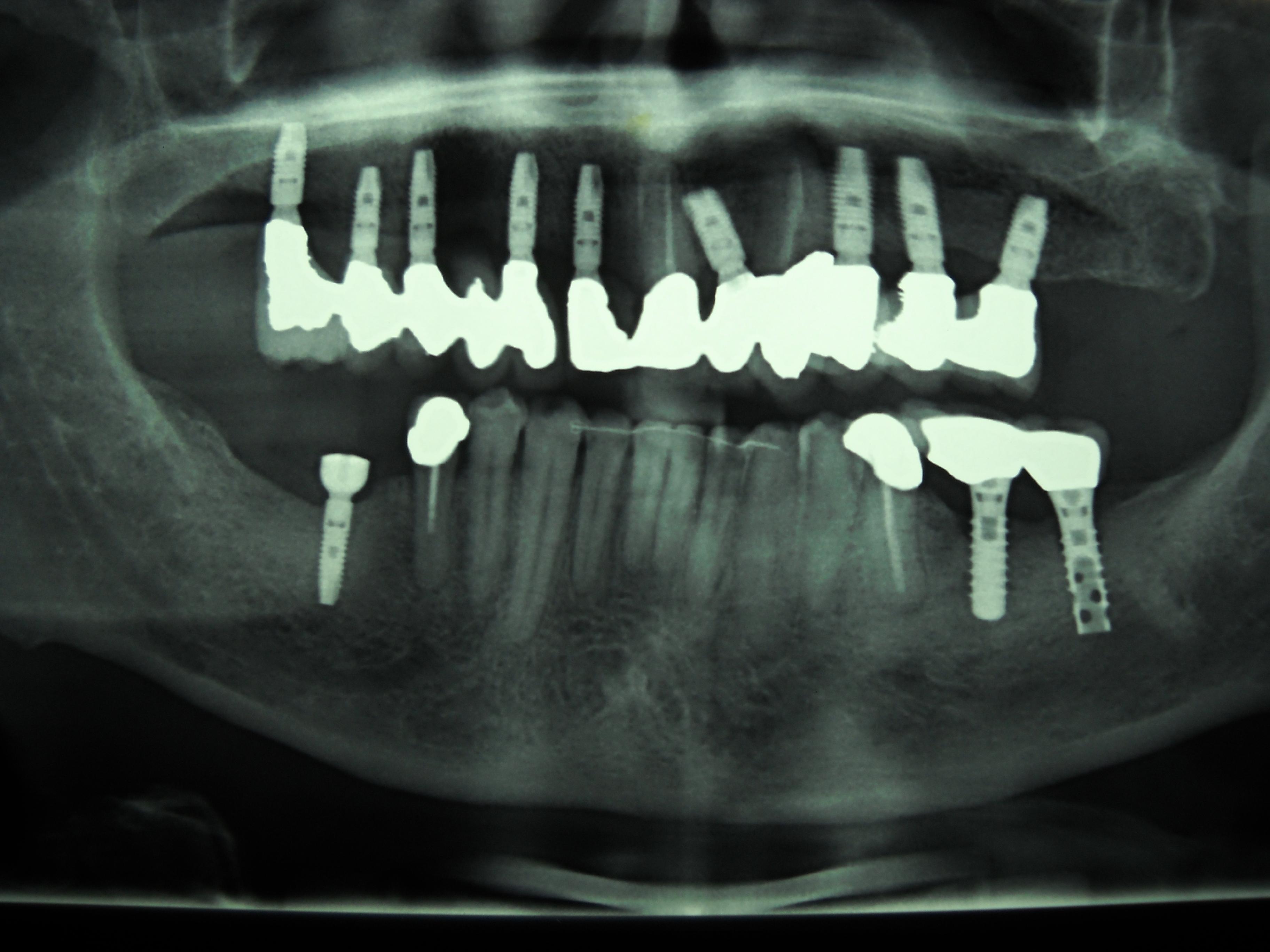 Implantologia dentale: impianti su arcata superiore