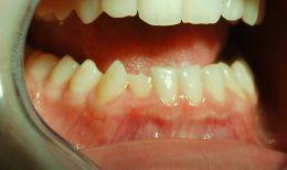 Trattamento conservativo fratture dentali