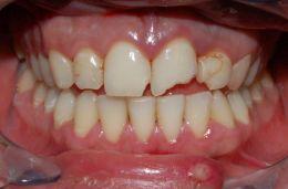 Fratture da traumi dentali