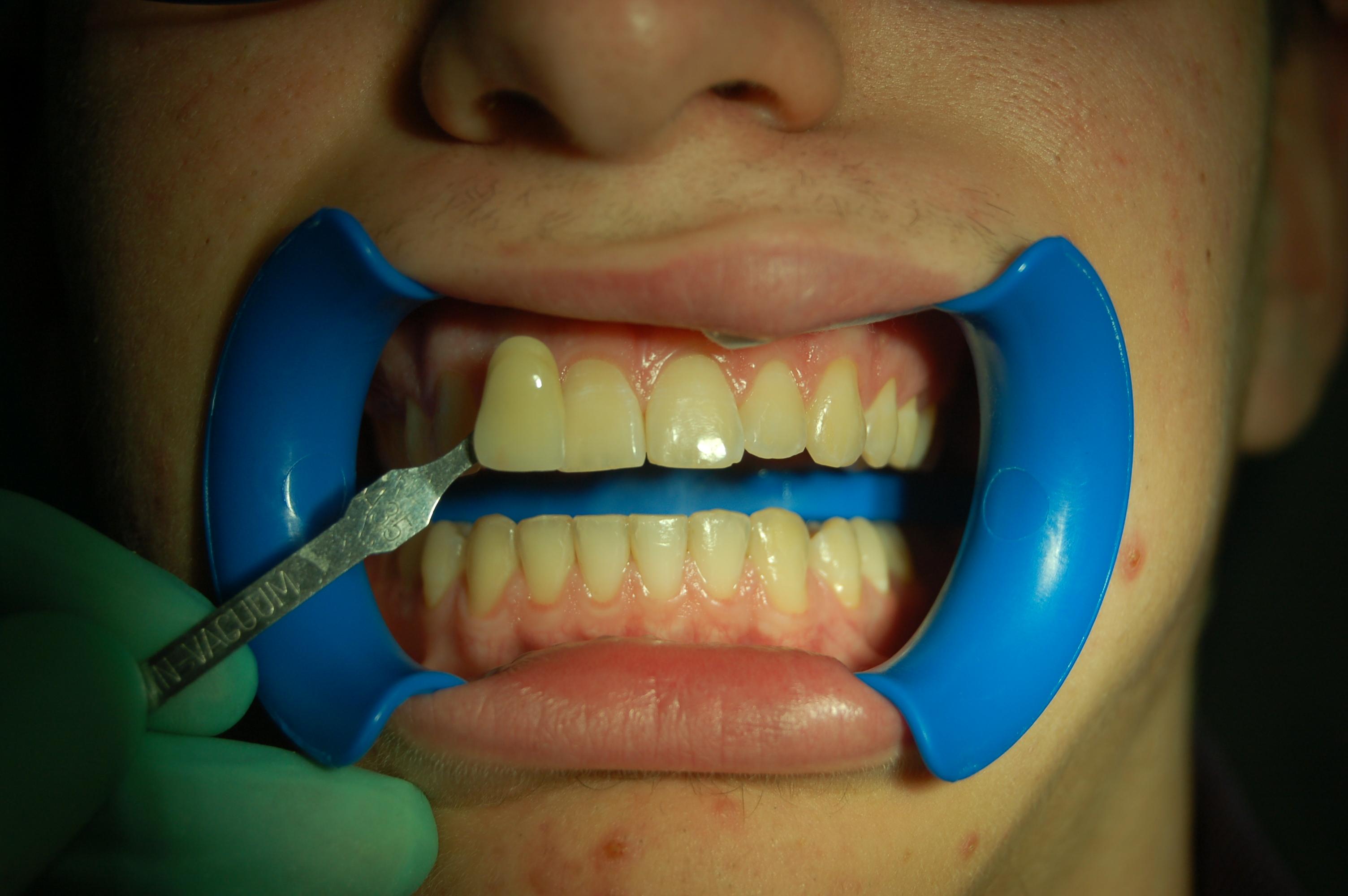 Sbiancamento dentale professionale con perossido di idrogeno