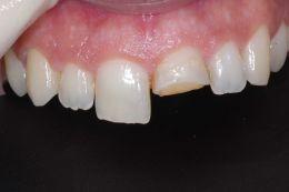 Otturazioni estetiche denti anteriori